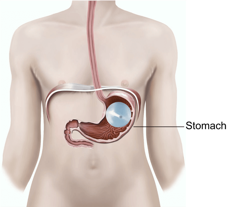 intragastric balloon insertion